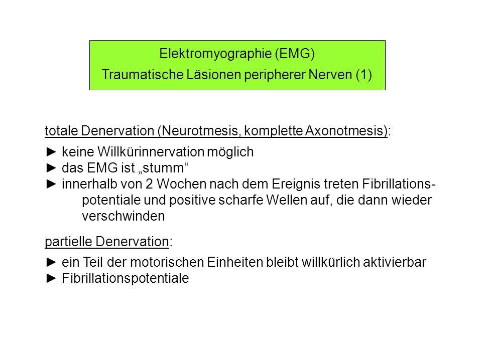 Elektromyographie (EMG) Traumatische Läsionen peripherer Nerven (1) totale Denervation (Neurotmesis, komplette Axonotmesis): keine Willkürinnervation