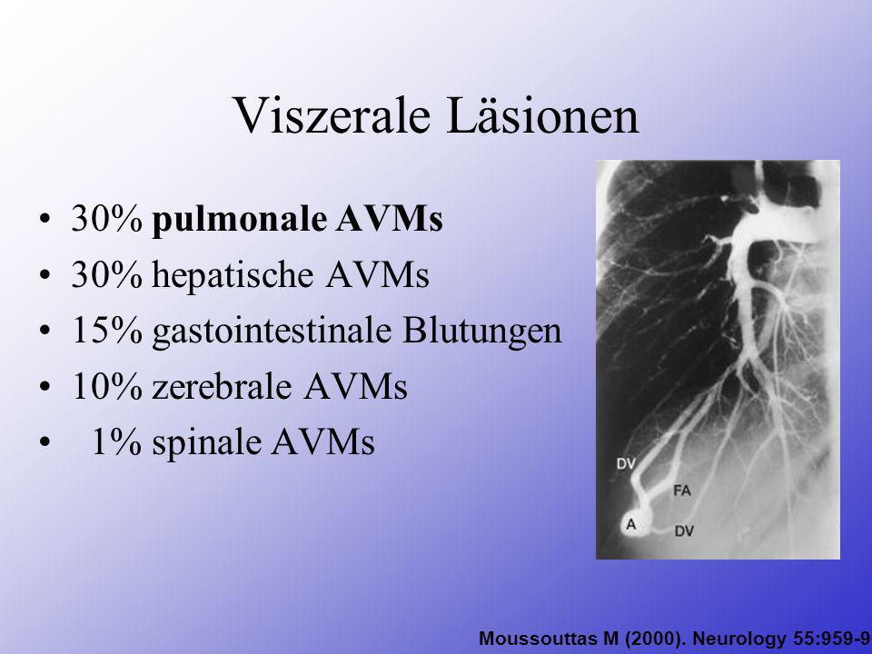 Viszerale Läsionen 30% pulmonale AVMs 30% hepatische AVMs 15% gastointestinale Blutungen 10% zerebrale AVMs 1% spinale AVMs Moussouttas M (2000). Neur