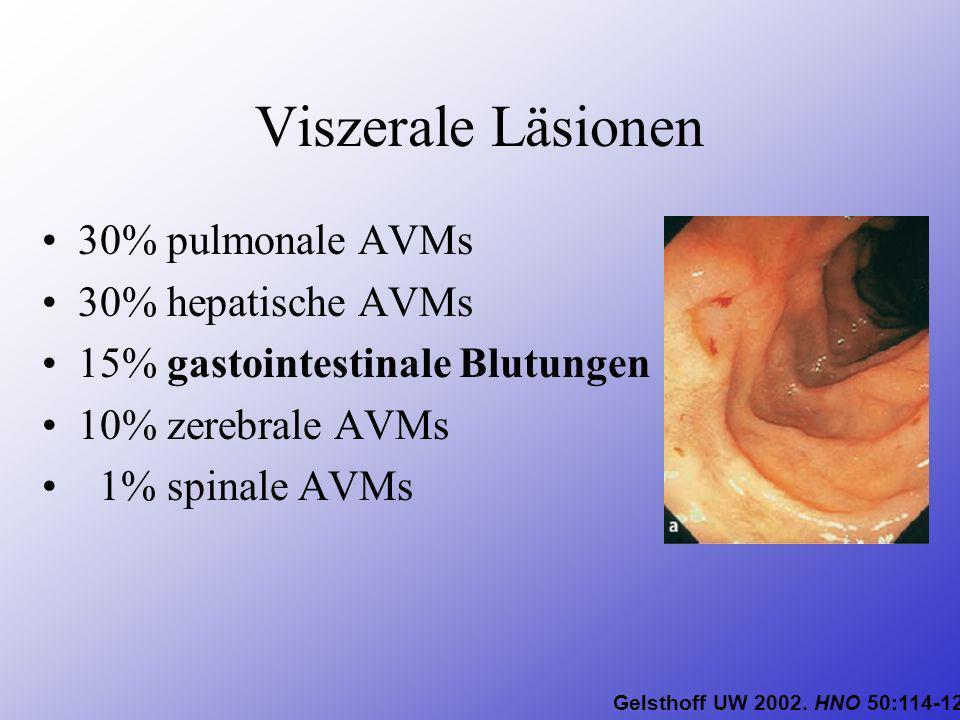 Viszerale Läsionen 30% pulmonale AVMs 30% hepatische AVMs 15% gastointestinale Blutungen 10% zerebrale AVMs 1% spinale AVMs Gelsthoff UW 2002. HNO 50: