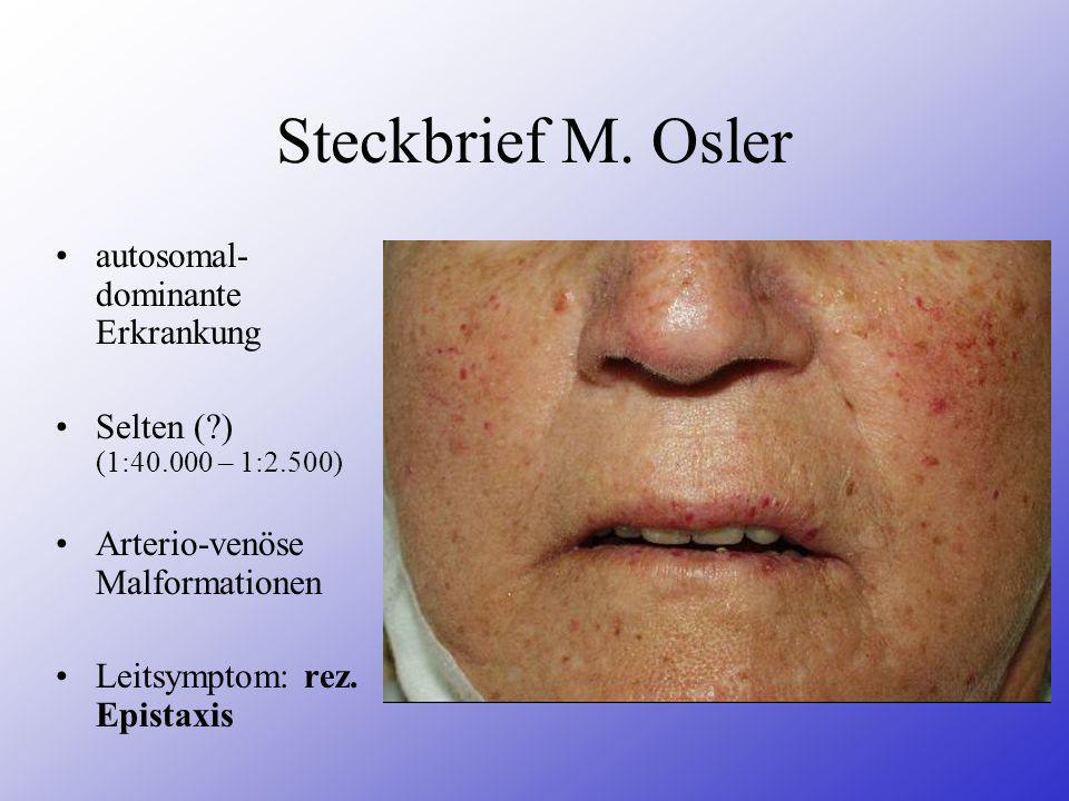 Steckbrief M. Osler autosomal- dominante Erkrankung Selten (?) (1:40.000 – 1:2.500) Arterio-venöse Malformationen Leitsymptom: rez. Epistaxis