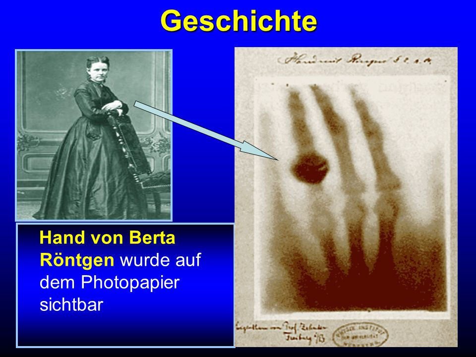 Geschichte Die anwesenden Wissenschafter beschlossen, diese Strahlen nach ihrem Entdecker Röntgenstrahlen zu nennen paper schreiben – immer wichtig