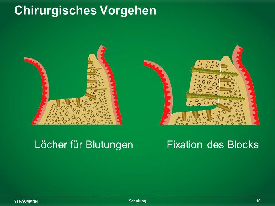 STRAUMANN 10 Schulung Chirurgisches Vorgehen Löcher für Blutungen Fixation des Blocks