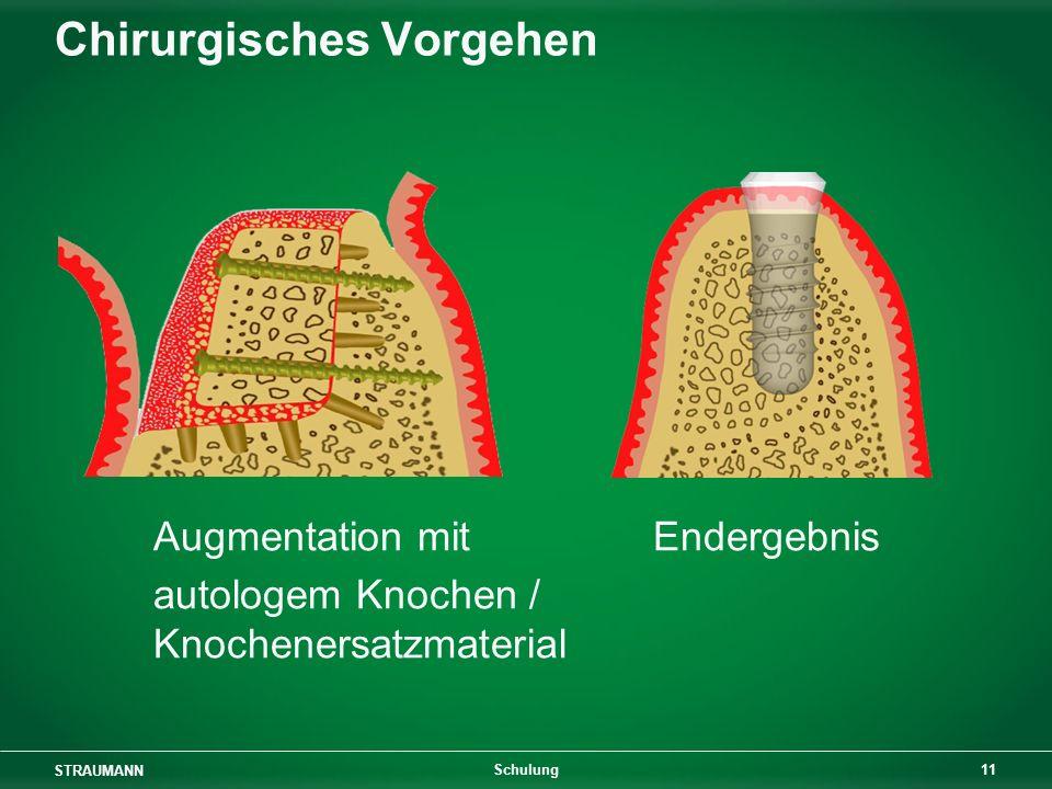 STRAUMANN 11 Schulung Chirurgisches Vorgehen Augmentation mit Endergebnis autologem Knochen / Knochenersatzmaterial