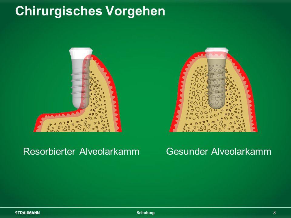 STRAUMANN 9 Schulung Chirurgisches Vorgehen 1,5 mm1,25 mm Gleitlöcher in entnommenem Löcher im Alveolarkamm Knochenblock