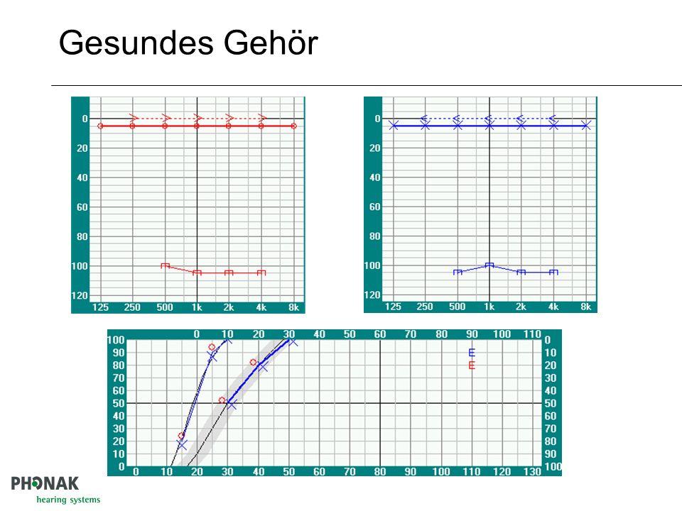 Aufbau des Sprachaudiogramms Zahlen Einsilber Unbehaglichkeits- schwelle Hörverlust für Sprache Maximales Sprachverstehe n