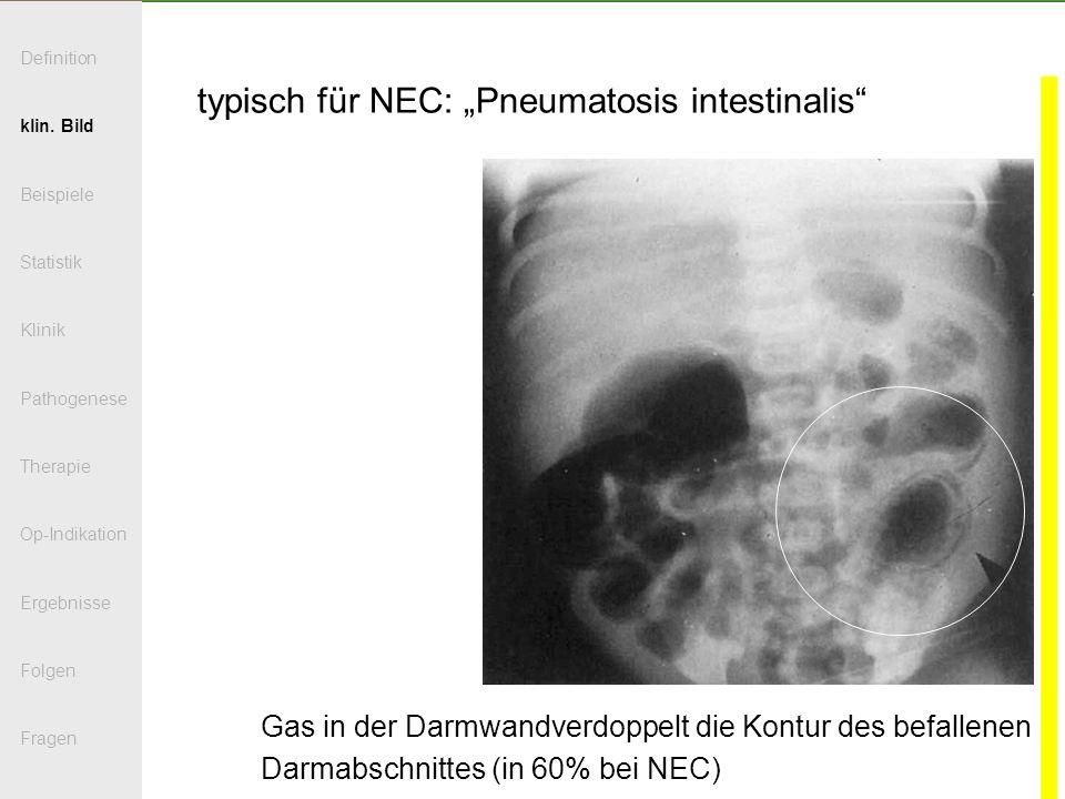 typisch für NEC: Pneumatosis intestinalis Gas in der Darmwandverdoppelt die Kontur des befallenen Darmabschnittes (in 60% bei NEC) Definition klin. Bi