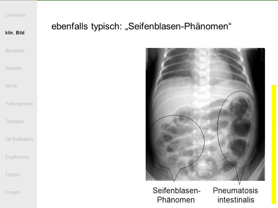 ebenfalls typisch: Seifenblasen-Phänomen Seifenblasen- Pneumatosis Phänomen intestinalis Definition klin. Bild Beispiele Statistik Klinik Pathogenese