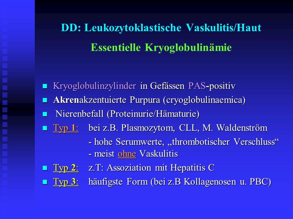 DD: Leukozytoklastische Vaskulitis/Haut Essentielle Kryoglobulinämie Kryoglobulinzylinder in Gefässen PAS-positiv Kryoglobulinzylinder in Gefässen PAS
