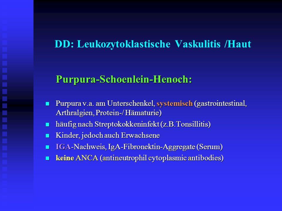 DD: Leukozytoklastische Vaskulitis /Haut Purpura-Schoenlein-Henoch: Purpura v.a. am Unterschenkel, systemisch (gastrointestinal, Arthralgien, Protein-