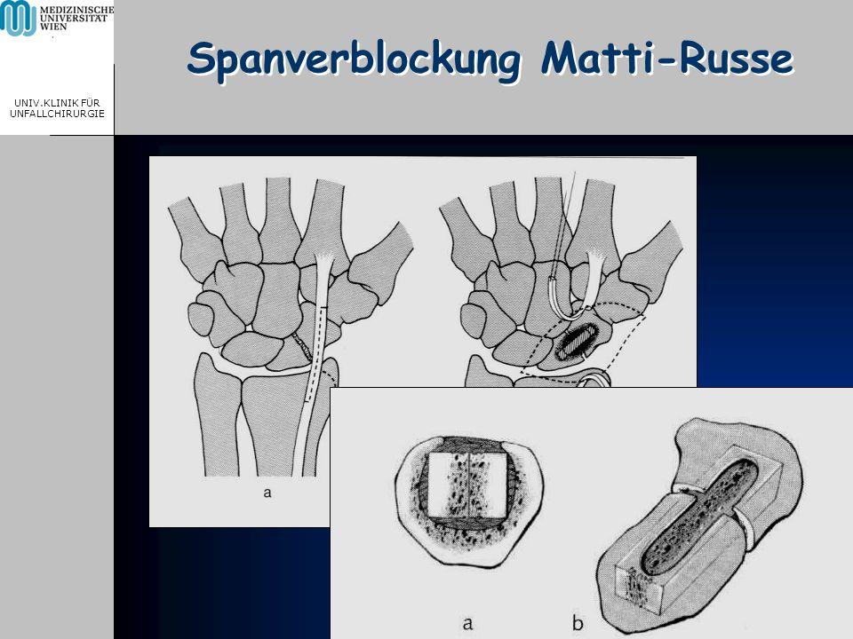 MEDICAL UNIVERSITY, VIENNA, AUSTRIA UNIV.KLINIK FÜR UNFALLCHIRURGIE Spanverblockung Matti-Russe