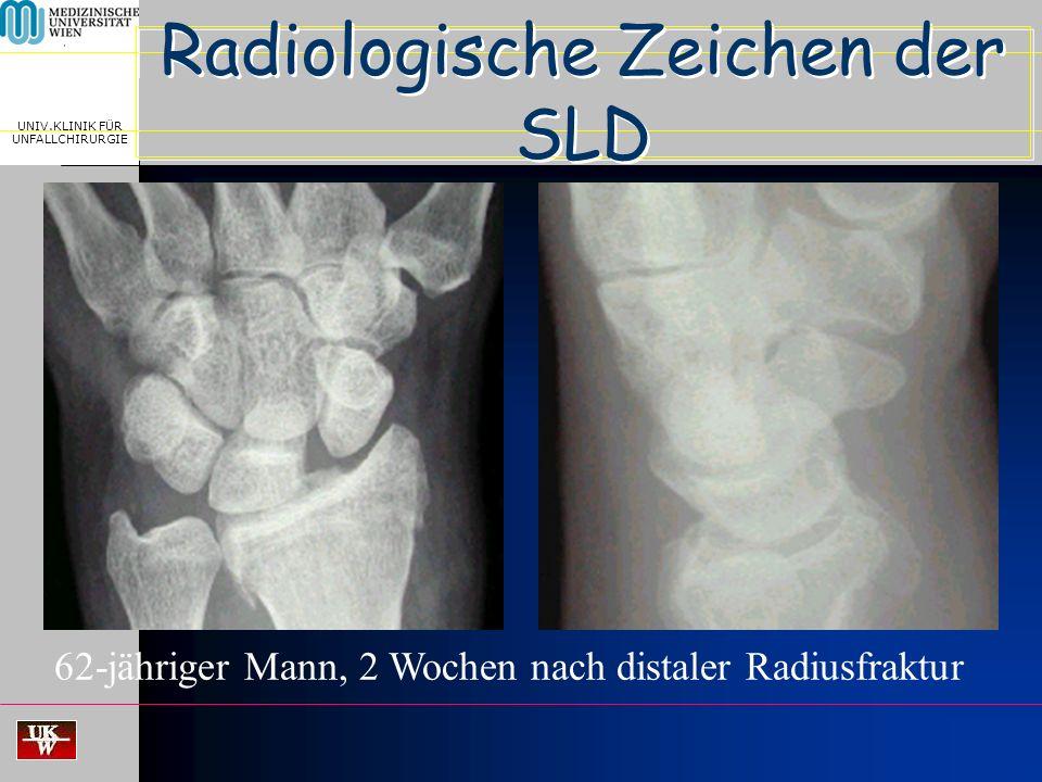 MEDICAL UNIVERSITY, VIENNA, AUSTRIA UNIV.KLINIK FÜR UNFALLCHIRURGIE Radiologische Zeichen der SLD > 2 mm < 7 mm ~ 90° 62-jähriger Mann, 2 Wochen nach distaler Radiusfraktur