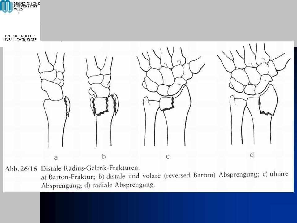 MEDICAL UNIVERSITY, VIENNA, AUSTRIA UNIV.KLINIK FÜR UNFALLCHIRURGIE Radiologische Zeichen der SLD Scapholunäre Lücke > 2 mm
