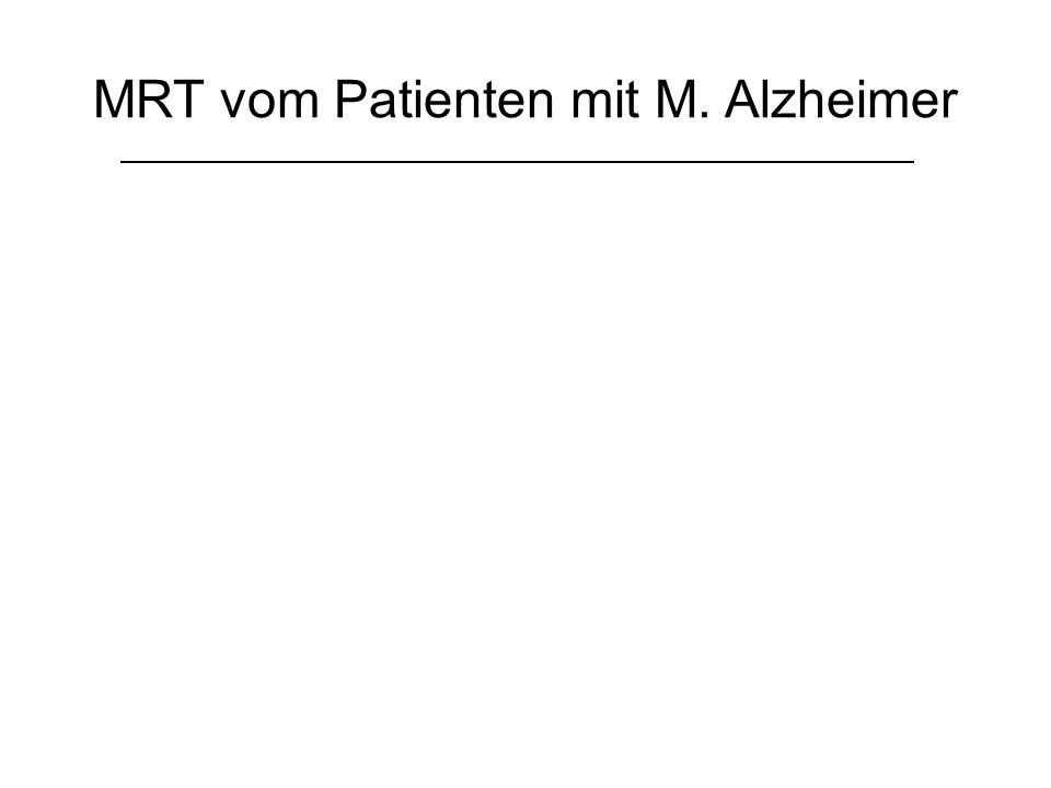 Lewy-Körperchen-Erkrankung & M.Parkinson mit Demenz Erstbeschreibung: Friedrich H.