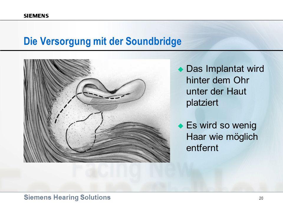 Siemens Hearing Solutions 20 Die Versorgung mit der Soundbridge Das Implantat wird hinter dem Ohr unter der Haut platziert Es wird so wenig Haar wie m