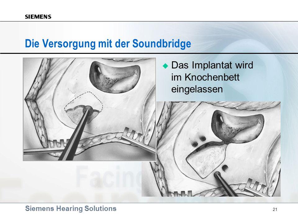 Siemens Hearing Solutions 21 Die Versorgung mit der Soundbridge Das Implantat wird im Knochenbett eingelassen