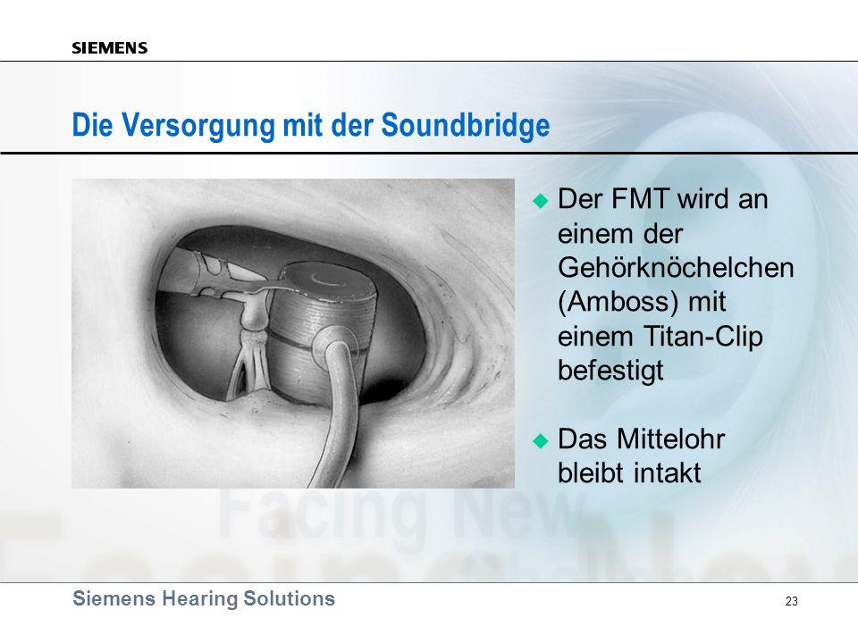 Siemens Hearing Solutions 23 Die Versorgung mit der Soundbridge Der FMT wird an einem der Gehörknöchelchen (Amboss) mit einem Titan-Clip befestigt Das