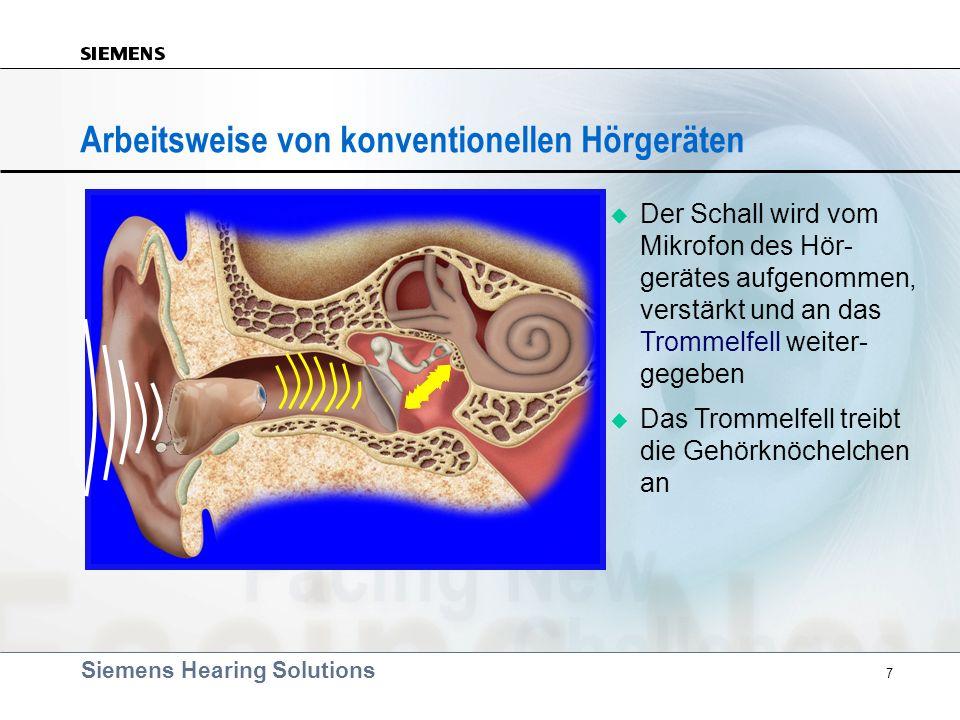 Siemens Hearing Solutions 7 Arbeitsweise von konventionellen Hörgeräten Der Schall wird vom Mikrofon des Hör- gerätes aufgenommen, verstärkt und an da