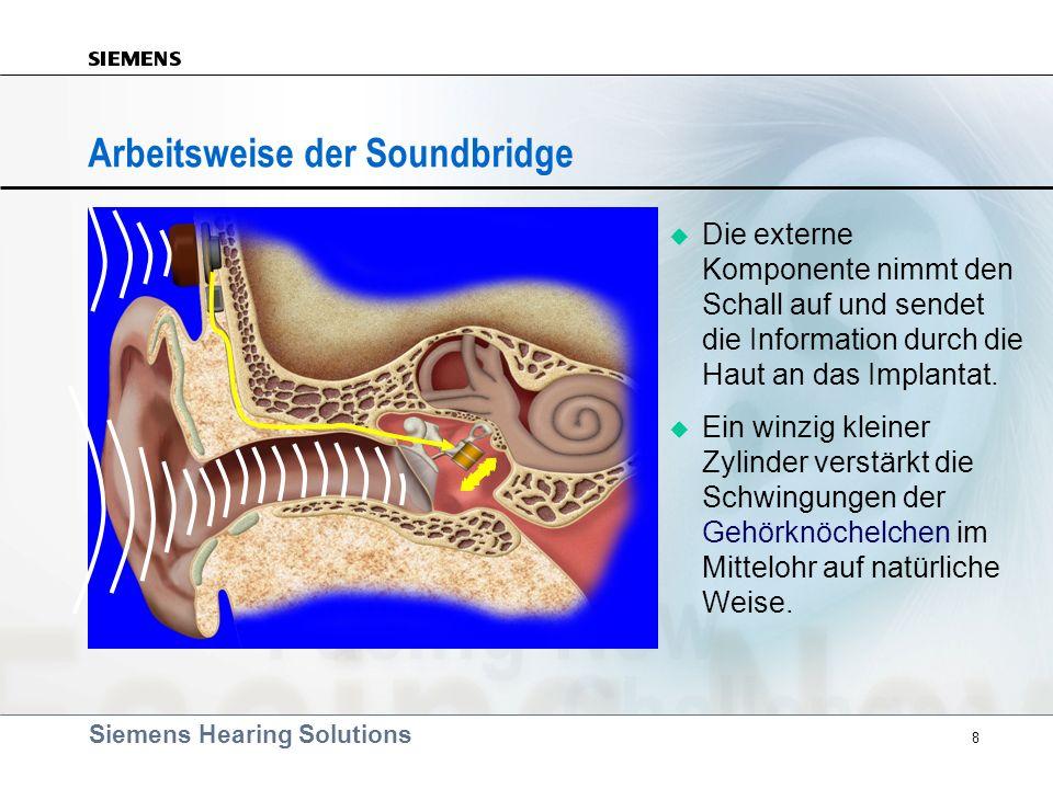 Siemens Hearing Solutions 8 Arbeitsweise der Soundbridge Die externe Komponente nimmt den Schall auf und sendet die Information durch die Haut an das