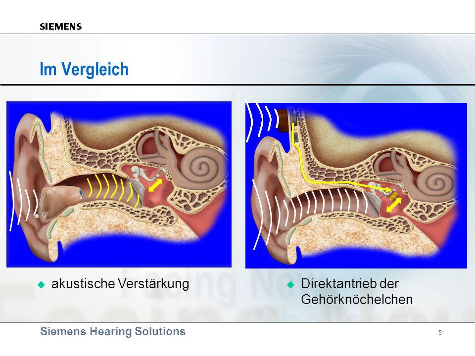 Siemens Hearing Solutions 9 Im Vergleich akustische Verstärkung Direktantrieb der Gehörknöchelchen