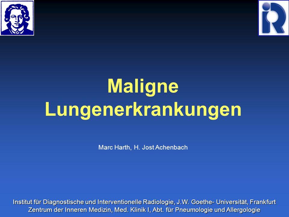 Maligne Lungenerkrankungen Marc Harth, H. Jost Achenbach Institut für Diagnostische und Interventionelle Radiologie, J.W. Goethe- Universität, Frankfu