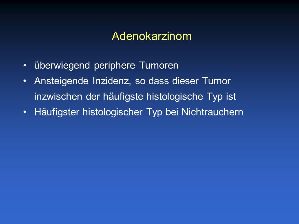 überwiegend periphere Tumoren Ansteigende Inzidenz, so dass dieser Tumor inzwischen der häufigste histologische Typ ist Häufigster histologischer Typ