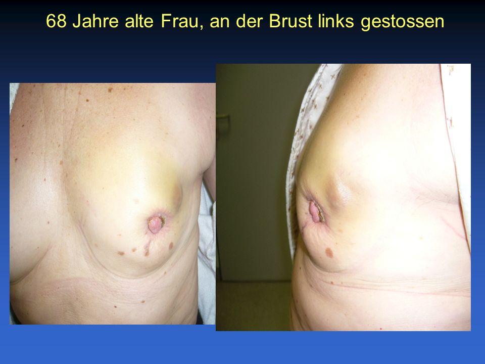 68 Jahre alte Frau, an der Brust links gestossen