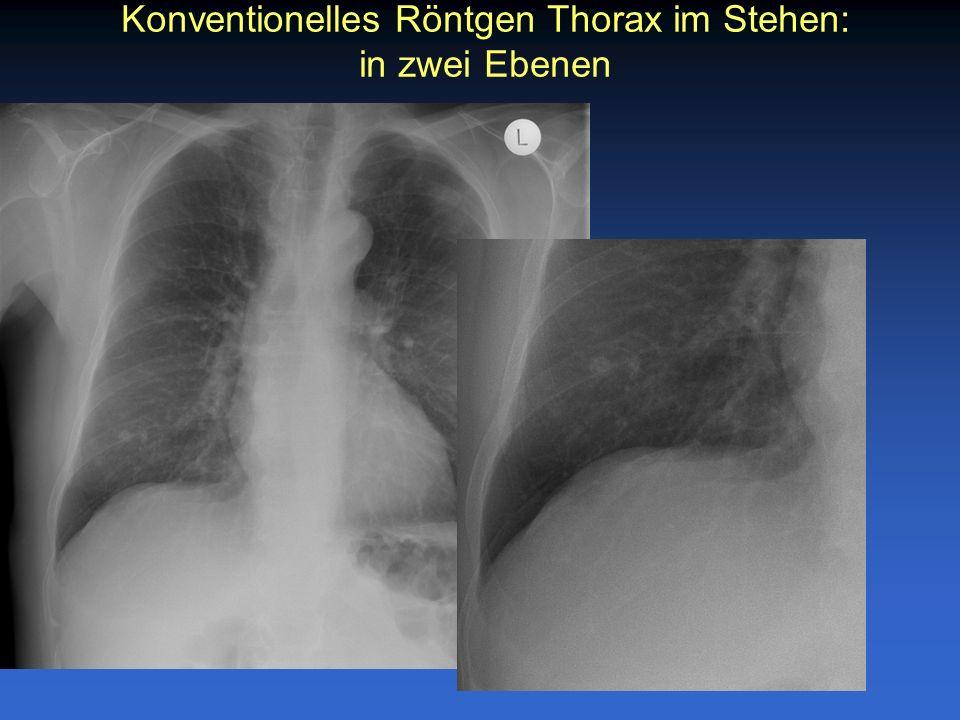 Konventionelles Röntgen Thorax im Stehen: in zwei Ebenen