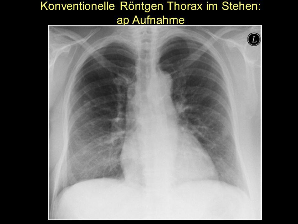 Konventionelle Röntgen Thorax im Stehen: ap Aufnahme