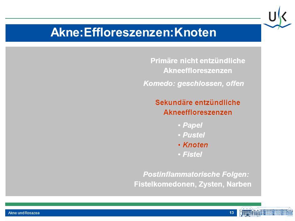 13 Sekundäre entzündliche Akneeffloreszenzen Papel Pustel Knoten Fistel Postinflammatorische Folgen: Fistelkomedonen, Zysten, Narben Primäre nicht ent