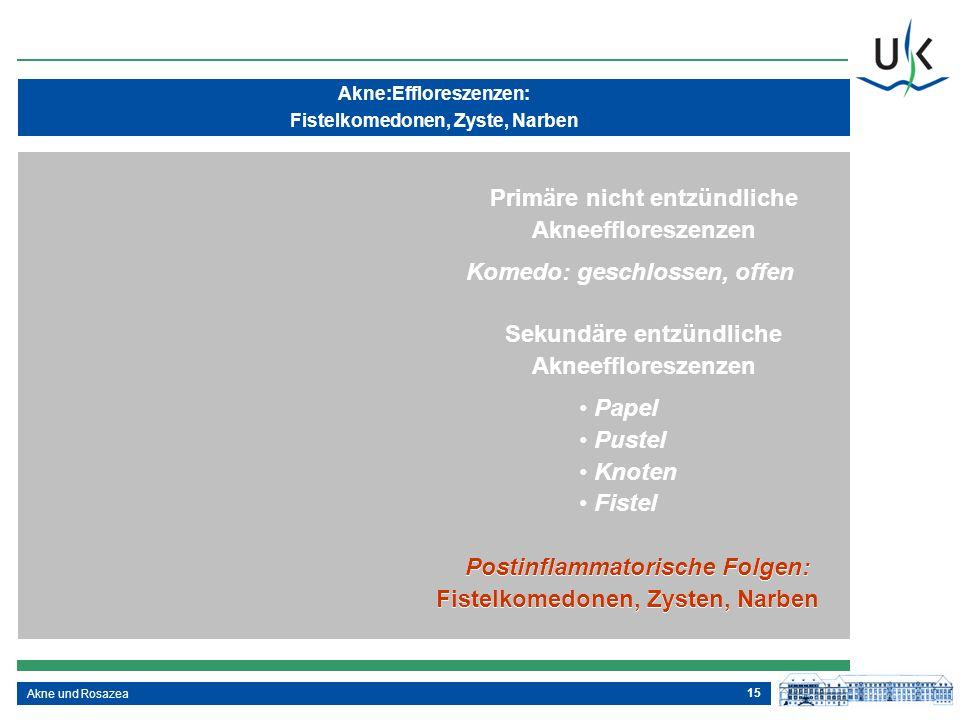 15 Sekundäre entzündliche Akneeffloreszenzen Papel Pustel Knoten Fistel Postinflammatorische Folgen: Fistelkomedonen, Zysten, Narben Primäre nicht ent