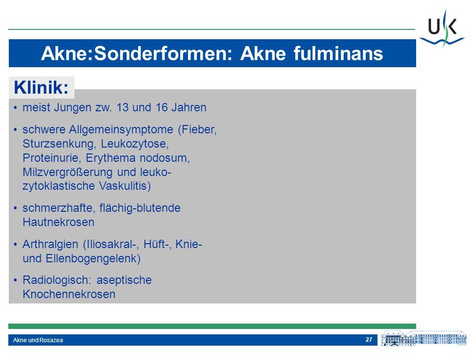 27 Akne und Rosazea Akne:Sonderformen: Akne fulminans meist Jungen zw. 13 und 16 Jahren schwere Allgemeinsymptome (Fieber, Sturzsenkung, Leukozytose,