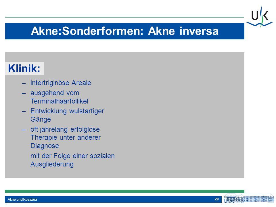 29 Akne und Rosazea Akne:Sonderformen: Akne inversa –intertriginöse Areale –ausgehend vom Terminalhaarfollikel –Entwicklung wulstartiger Gänge –oft ja