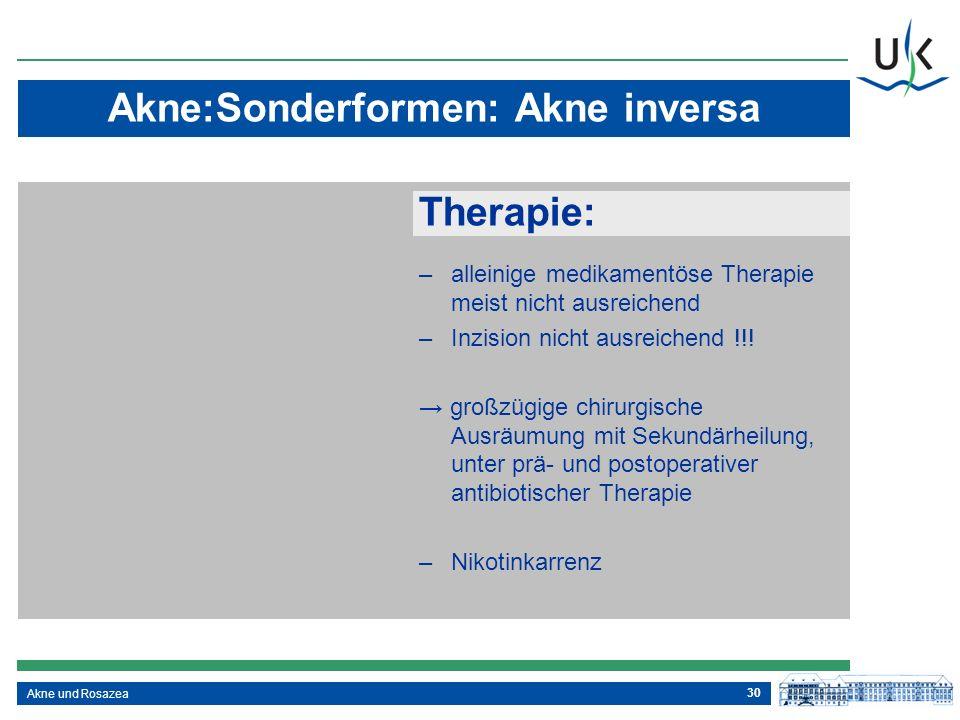 30 Akne und Rosazea Akne:Sonderformen: Akne inversa Therapie: –alleinige medikamentöse Therapie meist nicht ausreichend –Inzision nicht ausreichend !!
