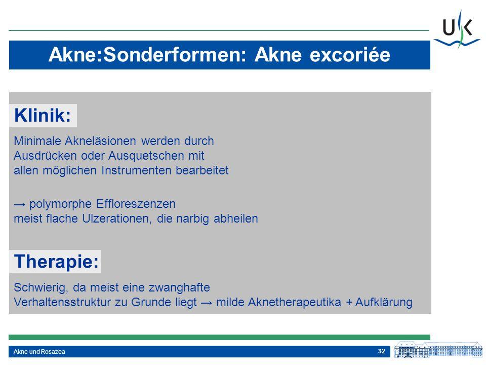 32 Akne und Rosazea Akne:Sonderformen: Akne excoriée Klinik: Minimale Akneläsionen werden durch Ausdrücken oder Ausquetschen mit allen möglichen Instr