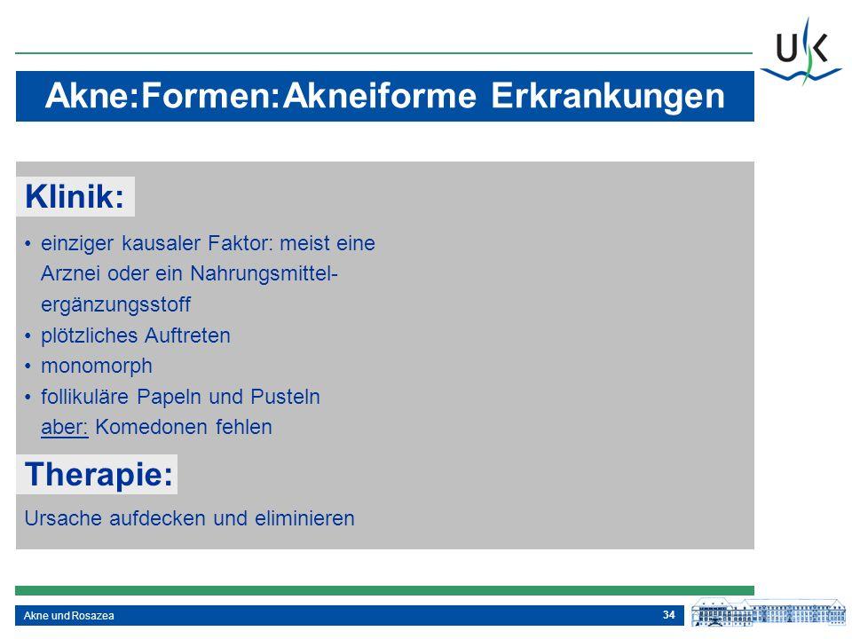34 Akne und Rosazea Akne:Formen:Akneiforme Erkrankungen einziger kausaler Faktor: meist eine Arznei oder ein Nahrungsmittel- ergänzungsstoff plötzlich