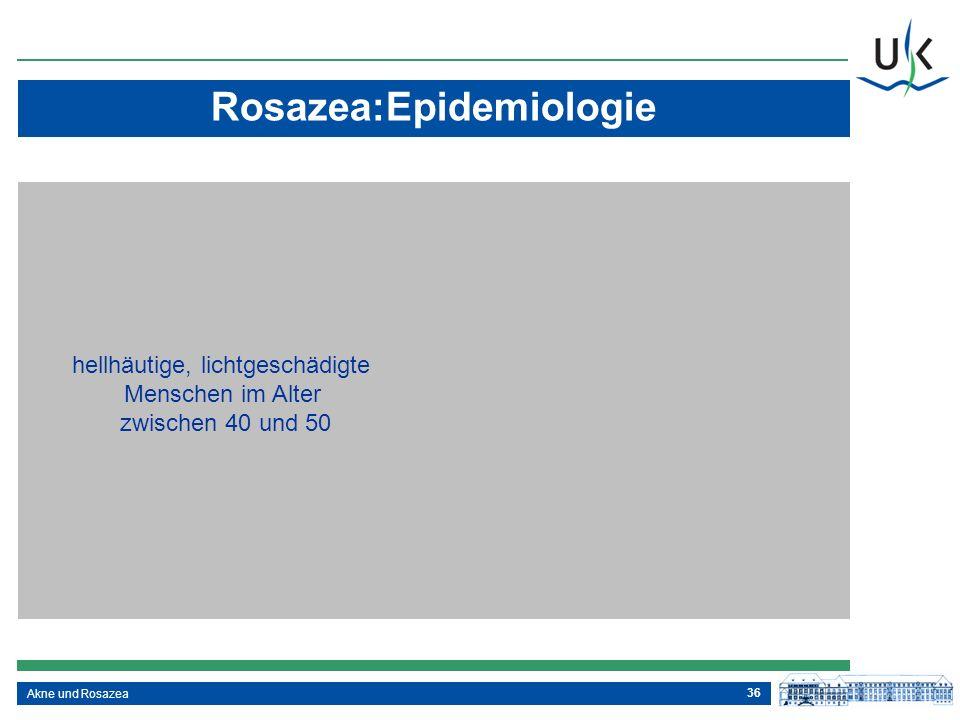 36 Rosazea:Epidemiologie Akne und Rosazea hellhäutige, lichtgeschädigte Menschen im Alter zwischen 40 und 50