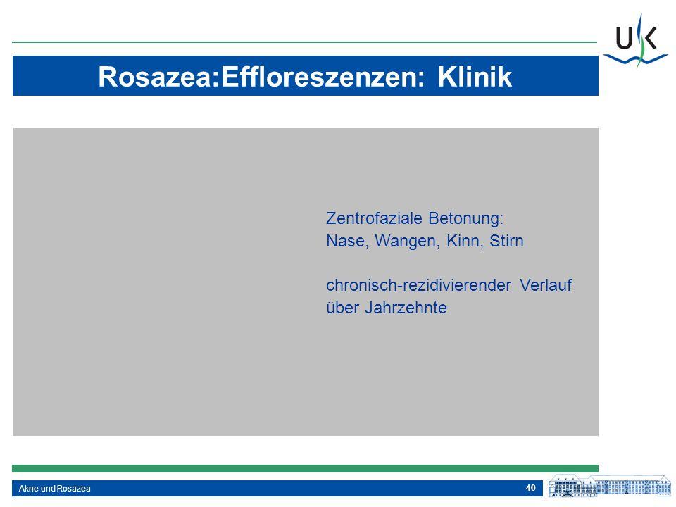 40 Akne und Rosazea Zentrofaziale Betonung: Nase, Wangen, Kinn, Stirn chronisch-rezidivierender Verlauf über Jahrzehnte Rosazea:Effloreszenzen: Klinik