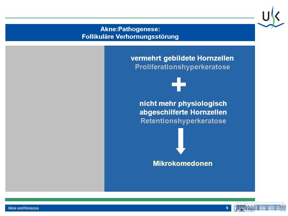 6 Akne:Pathogenese: Follikuläre Verhornungsstörung Akne und Rosazea vermehrt gebildete Hornzellen Proliferationshyperkeratose + nicht mehr physiologis