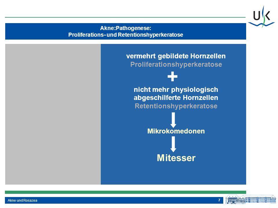 7 Akne:Pathogenese: Proliferations- und Retentionshyperkeratose Akne und Rosazea vermehrt gebildete Hornzellen Proliferationshyperkeratose nicht mehr
