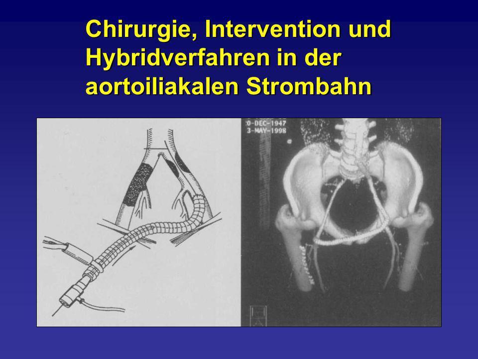 Chirurgie, Intervention und Hybridverfahren in der aortoiliakalen Strombahn Chirurgie, Intervention und Hybridverfahren in der aortoiliakalen Strombah