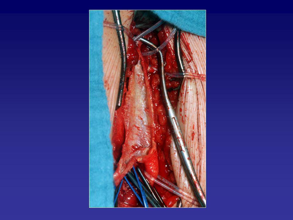 Carotischirurgie: Klinikum Esslingen 1.1.2005 – 31.12.