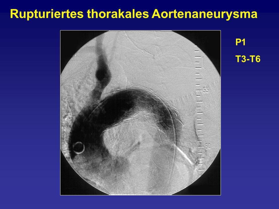 P1 T3-T6 Rupturiertes thorakales Aortenaneurysma