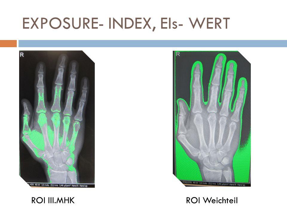 EXPOSURE- INDEX, EIs- WERT ROI III.MHKROI Weichteil