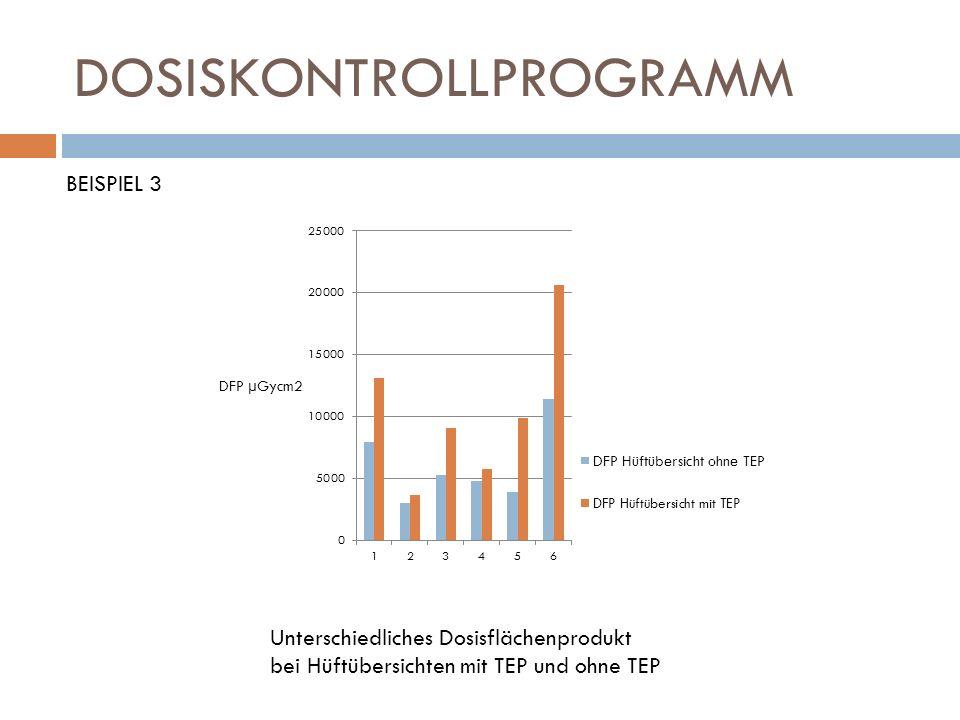DOSISKONTROLLPROGRAMM BEISPIEL 3 Unterschiedliches Dosisflächenprodukt bei Hüftübersichten mit TEP und ohne TEP