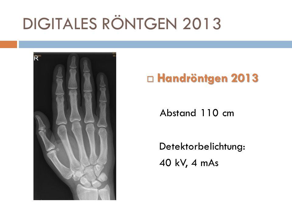DIGITALES RÖNTGEN 2013 Handröntgen 2013 Handröntgen 2013 Abstand 110 cm Detektorbelichtung: 40 kV, 4 mAs