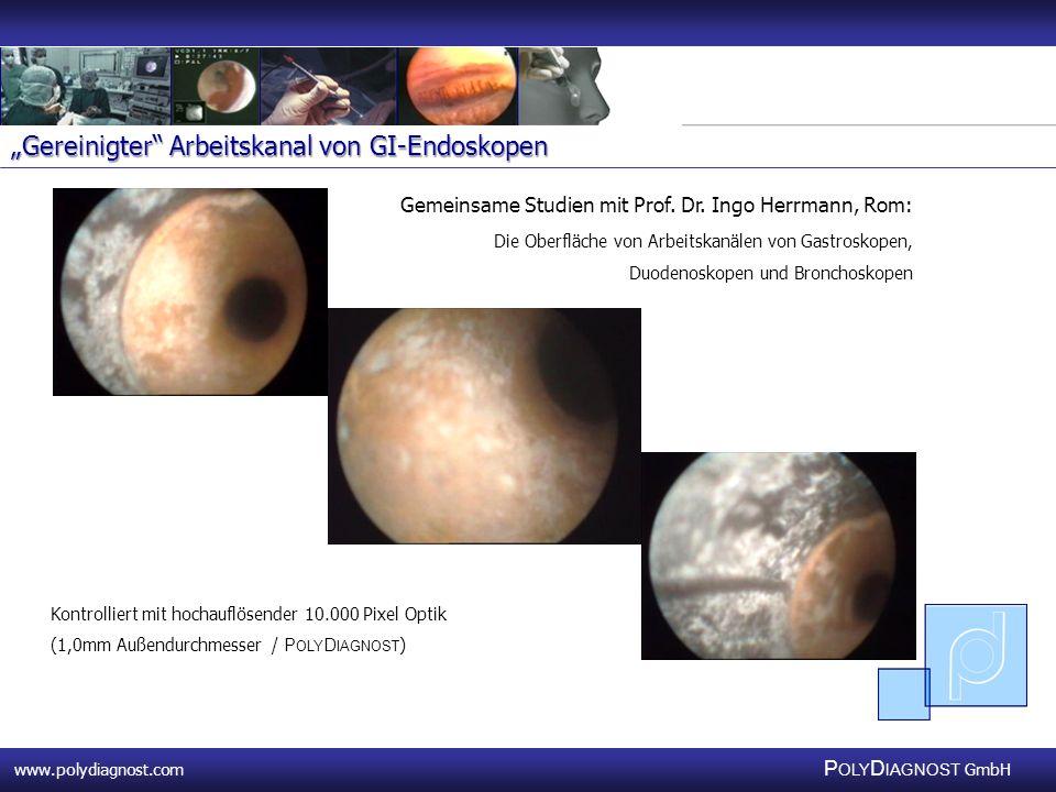 www.polydiagnost.com P OLY D IAGNOST GmbH www.polydiagnost.com P OLY D IAGNOST GmbH Gemeinsame Studien mit Prof. Dr. Ingo Herrmann, Rom: Die Oberfläch