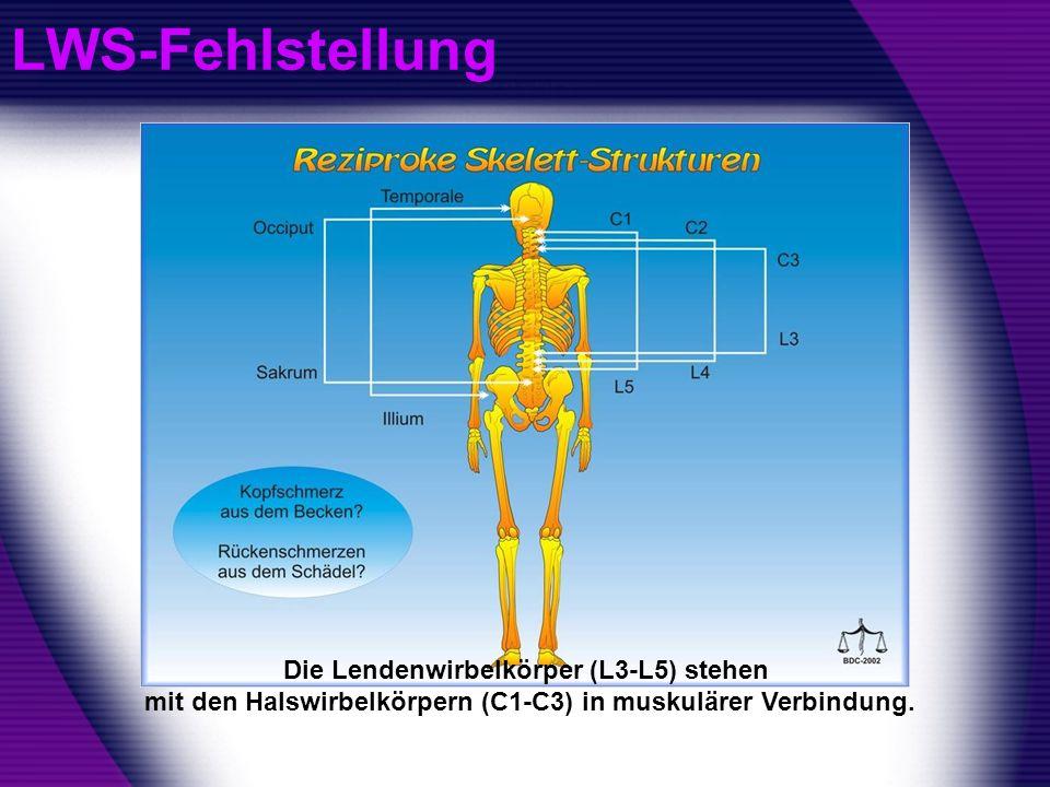 LWS-Fehlstellung Die Lendenwirbelkörper (L3-L5) stehen mit den Halswirbelkörpern (C1-C3) in muskulärer Verbindung.