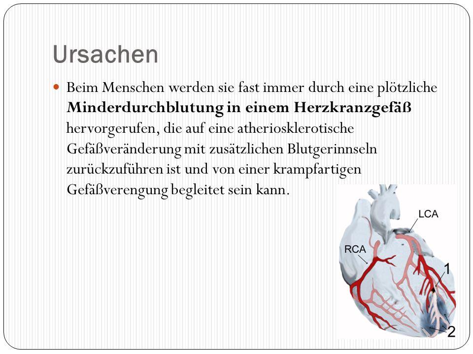 Ursachen Beim Menschen werden sie fast immer durch eine plötzliche Minderdurchblutung in einem Herzkranzgefäß hervorgerufen, die auf eine atherioskler