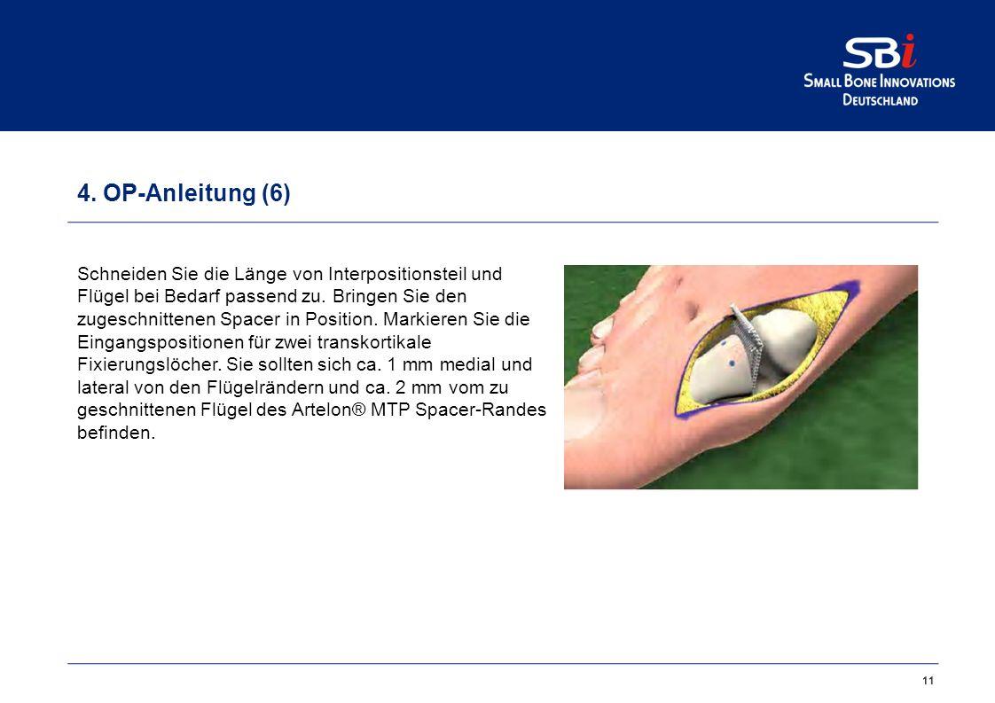 11 4. OP-Anleitung (6) Schneiden Sie die Länge von Interpositionsteil und Flügel bei Bedarf passend zu. Bringen Sie den zugeschnittenen Spacer in Posi