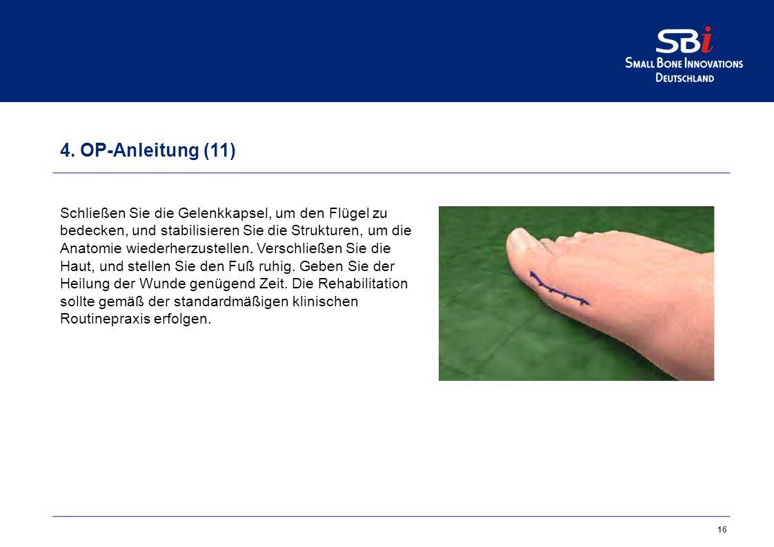 16 4. OP-Anleitung (11) Schließen Sie die Gelenkkapsel, um den Flügel zu bedecken, und stabilisieren Sie die Strukturen, um die Anatomie wiederherzust